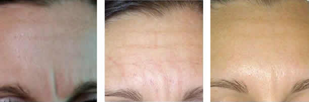 Micro-Needling - stage 1, 2 and 3 - Natural Collagen Induction Therapy